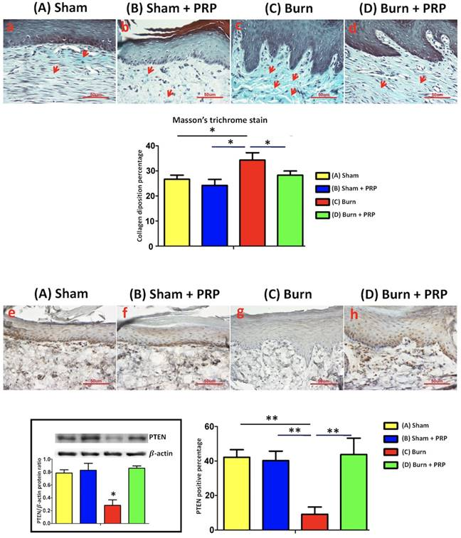 , Platelet-Rich Plasma Injection in Burn Scar Areas Alleviates Neuropathic Scar Pain